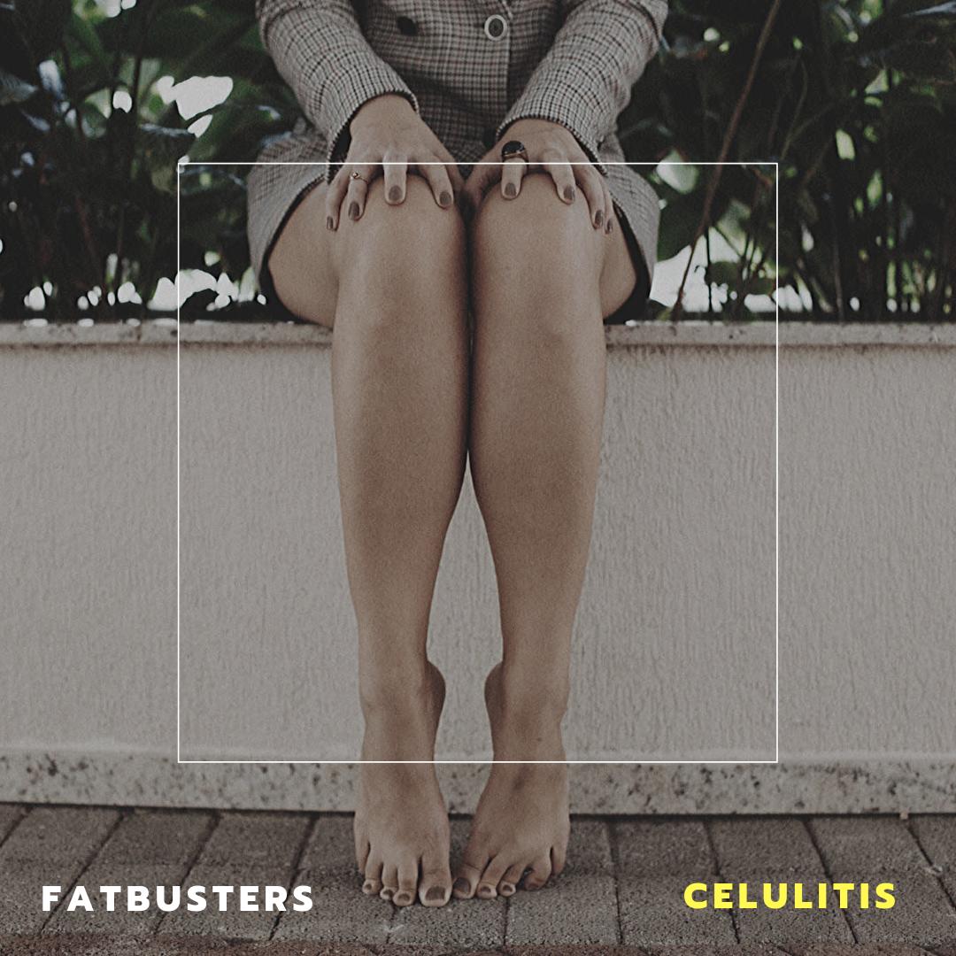 ¿Qué es la celulitis?